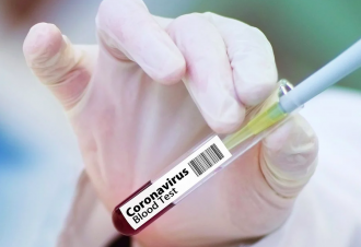 Коронавирус в Украине - вакцину от Covid-19 получит 20% населения