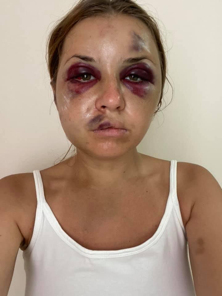 Анастасія Лугова після нападу / Фото facebook.com/anastaisha.lygova