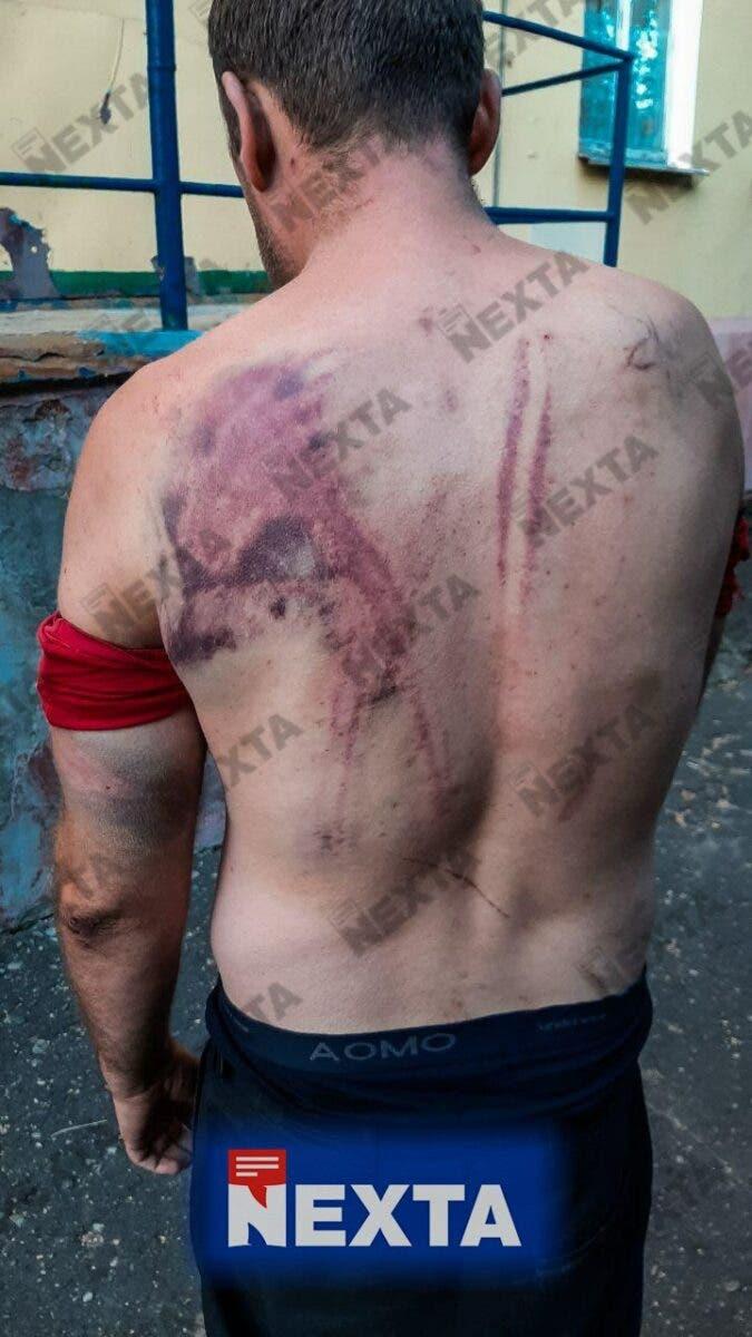 Следы избиения протестующих в Беларуси