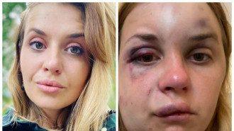 Лугову побили і намагалися зґвалтувати в поїзді / Фото facebook.com/anastaisha.lygova