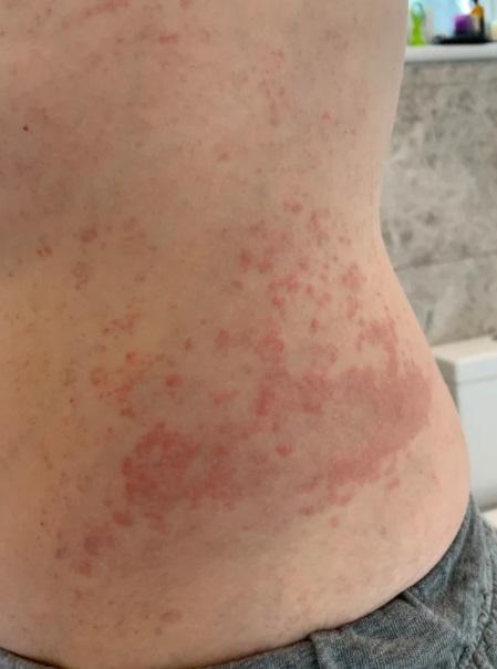 Коронавирус дает новый симптом - фото и виды
