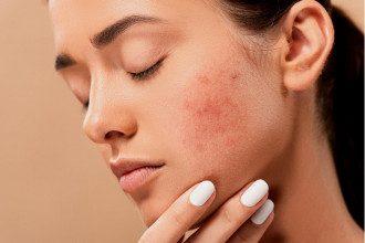 Акне-поширене шкірне захворювання/Pixabay