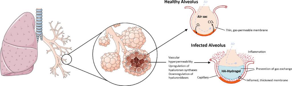 Симптомы коронавируса - у кого из пациентов легкие превращаются в желе