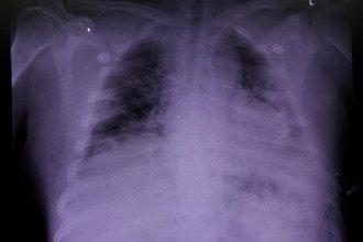 Врач рассказал, что коронавирусная пневмония серьезно отличается от бактериальной – Пневмония симптомы