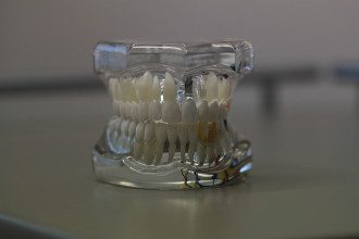 щелепа, зуби