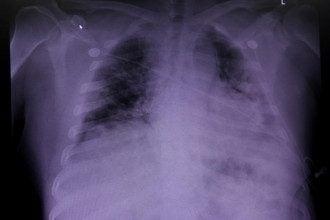 Педиатр поделился, что пневмонию у детей можно спровоцировать