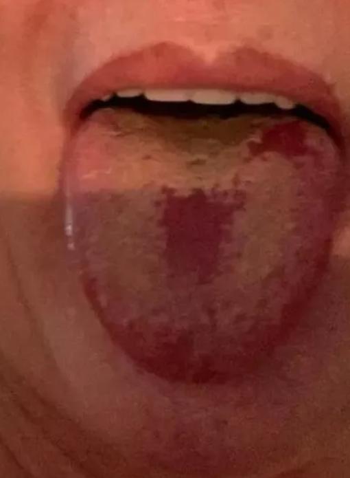 """""""Ковидный язык"""": врачи удивили новым симптомом болезни"""