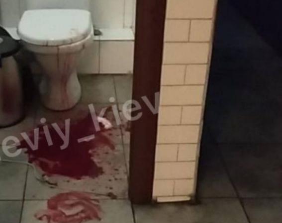 У ресторані Києва молодому чоловікові з надкушеним статевим органом вчасно надана допомога, заявив підприємець
