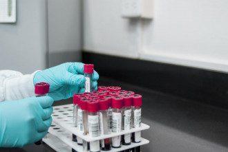 Аналіз_кровь_лабораторія